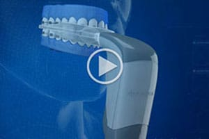 Acceledent video San Marcos Orthodontics San Marcos CA