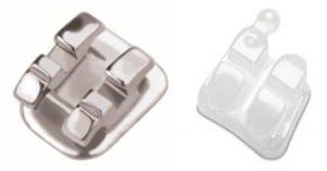 elite-orthodonitcs-in-san-diego-ca-uses-flash-free-3m-brackets-for-braces